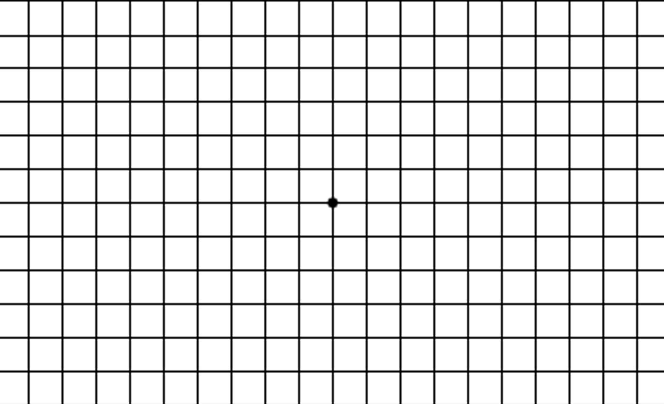 Image result for amsler grid